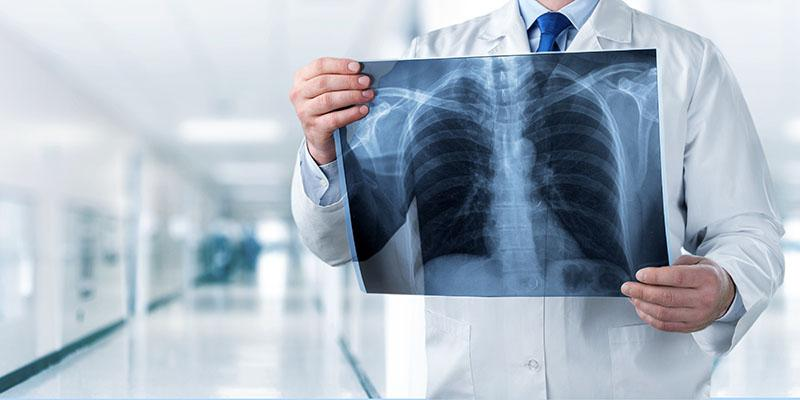 Image of a doctor holding a chest x-ray in a hospital corridor